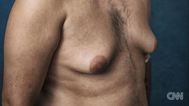 Mỹ: Hàng ngàn nam giới có ngực bự bất thường do sử dụng thuốc an thần - Ảnh 4.