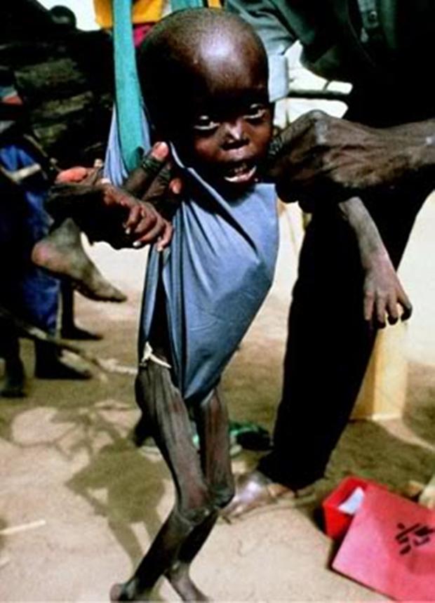 Chùm ảnh những đứa trẻ châu Phi gầy trơ xương vì đói sẽ khiến bạn không dám bỏ thừa đồ ăn thêm nữa - Ảnh 19.