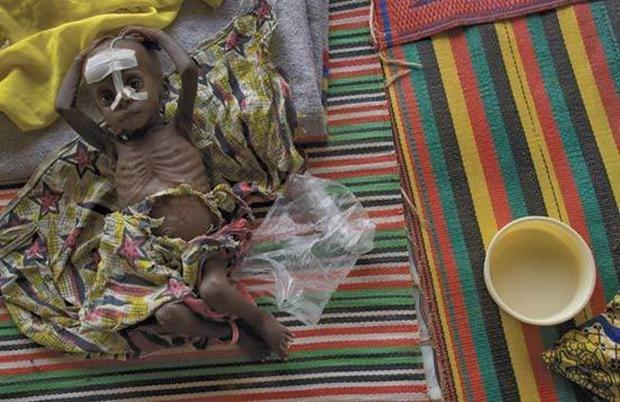 Chùm ảnh những đứa trẻ châu Phi gầy trơ xương vì đói sẽ khiến bạn không dám bỏ thừa đồ ăn thêm nữa - Ảnh 26.