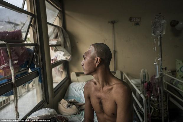Bạn sẽ không thể tin được đây là khung cảnh trong bệnh viện Venezuela - Ảnh 4.