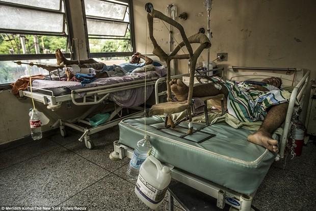 Bạn sẽ không thể tin được đây là khung cảnh trong bệnh viện Venezuela - Ảnh 2.