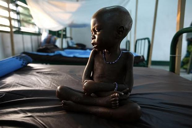 Chùm ảnh những đứa trẻ châu Phi gầy trơ xương vì đói sẽ khiến bạn không dám bỏ thừa đồ ăn thêm nữa - Ảnh 20.