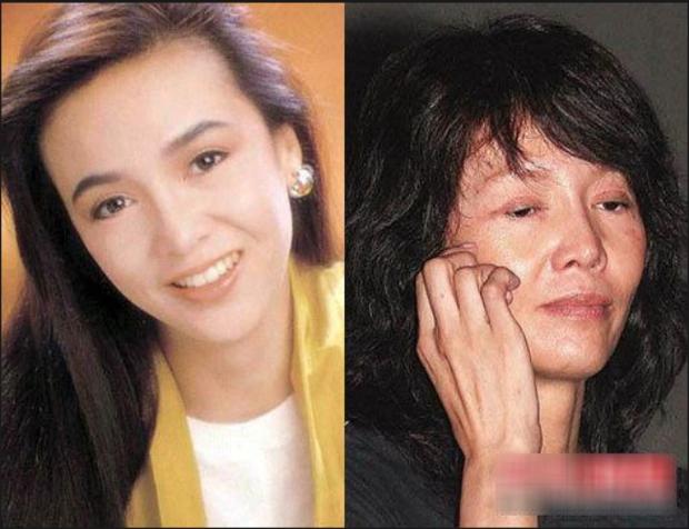 Ham đẹp như gái Hàn, nhiều phụ nữ Trung Quốc ôm hận thiên thu vì phẫu thuật thẩm mỹ hỏng - Ảnh 19.