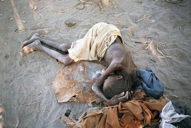Chùm ảnh những đứa trẻ châu Phi gầy trơ xương vì đói sẽ khiến bạn không dám bỏ thừa đồ ăn thêm nữa - Ảnh 25.
