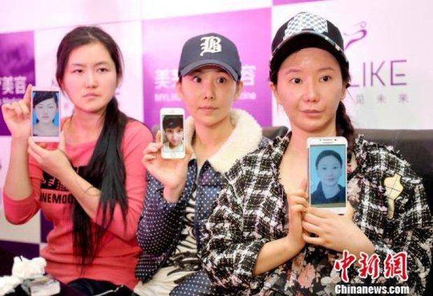 Ham đẹp như gái Hàn, nhiều phụ nữ Trung Quốc ôm hận thiên thu vì phẫu thuật thẩm mỹ hỏng - Ảnh 9.