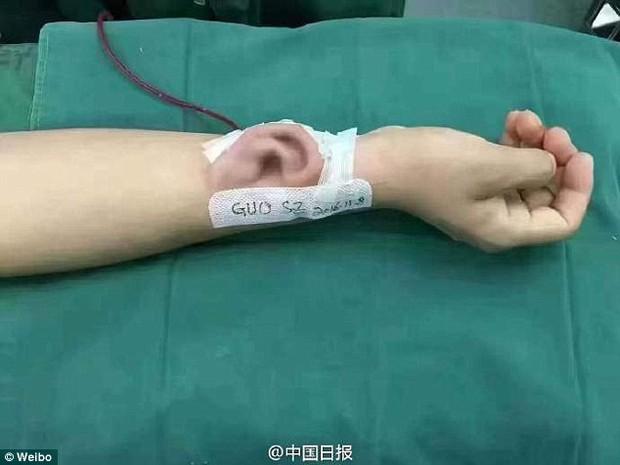 Trung Quốc giờ đã giỏi đến mức làm được cả... tai người fake, lại còn nuôi nó trên cánh tay - Ảnh 1.