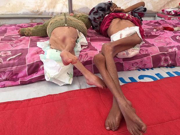Những bộ xương sống di động: Hình ảnh gây sốc về những đứa trẻ khốn khổ mắc kẹt trong chiến tranh - Ảnh 2.