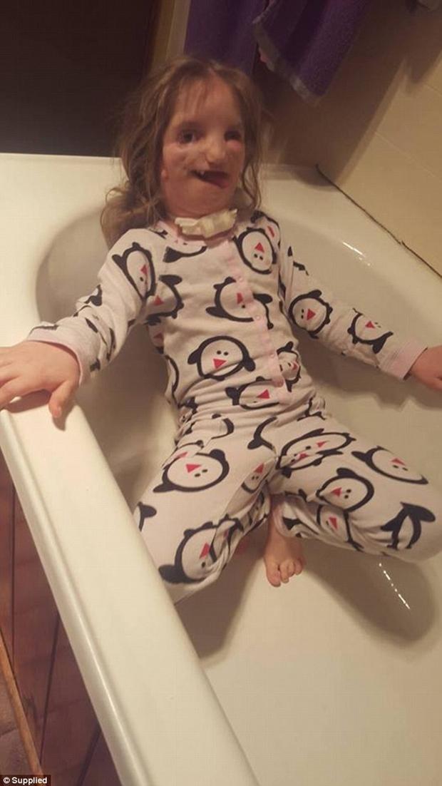 Vượt lên tất cả, cô bé 7 tuổi với gương mặt biến dạng này vẫn sống rất hạnh phúc - Ảnh 3.