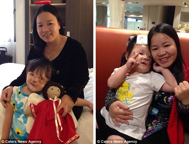 Bé gái 5 tuổi mang khối u che hết nửa gương mặt bất ngờ được một người xa lạ cứu sống - Ảnh 4.