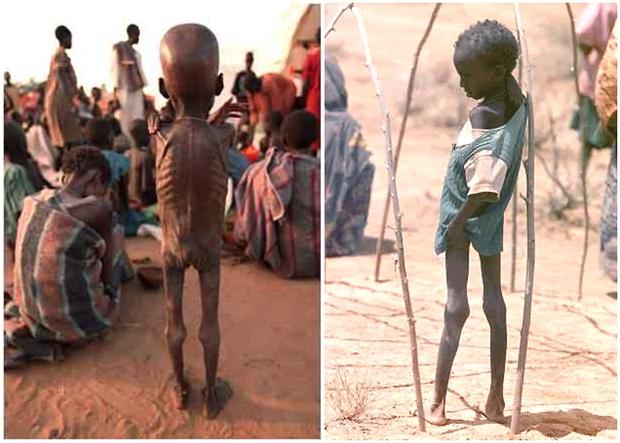 Chùm ảnh những đứa trẻ châu Phi gầy trơ xương vì đói sẽ khiến bạn không dám bỏ thừa đồ ăn thêm nữa - Ảnh 23.