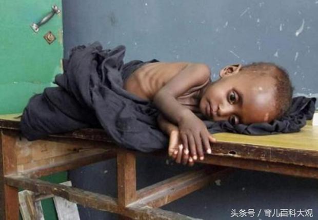 Chùm ảnh những đứa trẻ châu Phi gầy trơ xương vì đói sẽ khiến bạn không dám bỏ thừa đồ ăn thêm nữa - Ảnh 1.