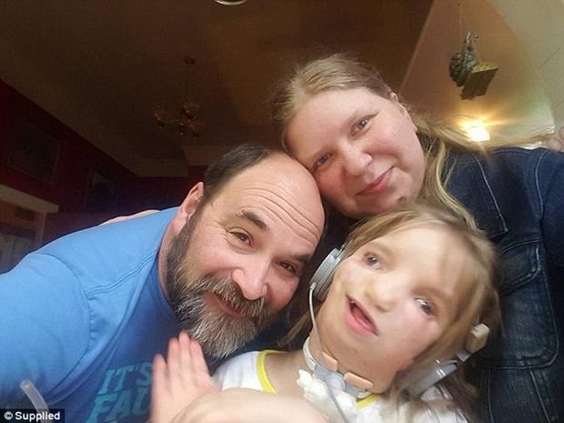 Vượt lên tất cả, cô bé 7 tuổi với gương mặt biến dạng này vẫn sống rất hạnh phúc - Ảnh 6.