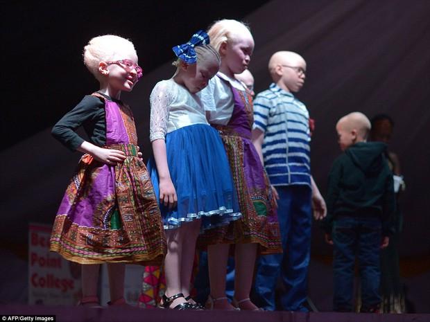 Vượt qua nỗi sợ hãi bị bắt cóc lấy cắp chân tay, các cô gái bạch tạng vẫn dũng cảm thi hoa hậu - Ảnh 5.