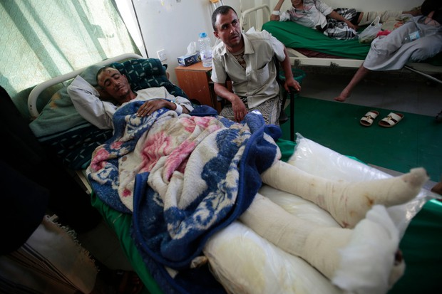 Những thân hình chỉ còn da bọc xương gây sốc: Cả một thế hệ của Yemen đang đứng trước nguy cơ diệt vong vì nạn - Ảnh 5.