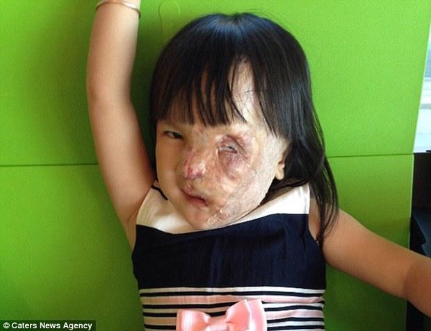 Bé gái 5 tuổi mang khối u che hết nửa gương mặt bất ngờ được một người xa lạ cứu sống - Ảnh 5.