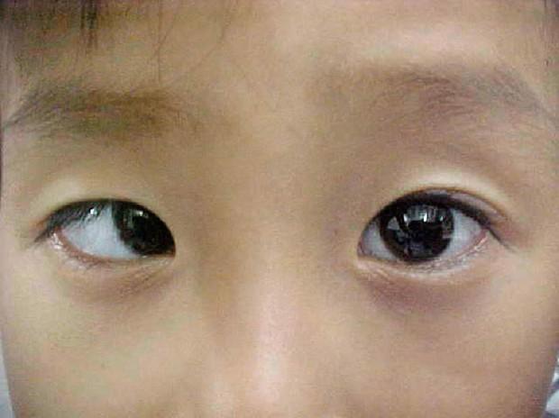Sự nguy hiểm của căn bệnh khiến Vân Hugo hỏng một mắt vĩnh viễn - Ảnh 2.