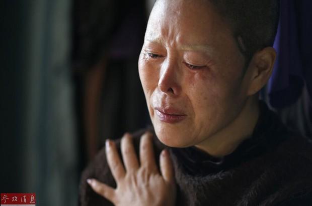 Ham đẹp như gái Hàn, nhiều phụ nữ Trung Quốc ôm hận thiên thu vì phẫu thuật thẩm mỹ hỏng - Ảnh 14.