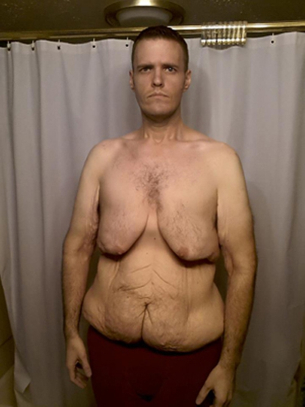 Sau khi xem xong chùm ảnh này, có lẽ bạn sẽ không còn điên cuồng giảm cân nữa - Ảnh 5.