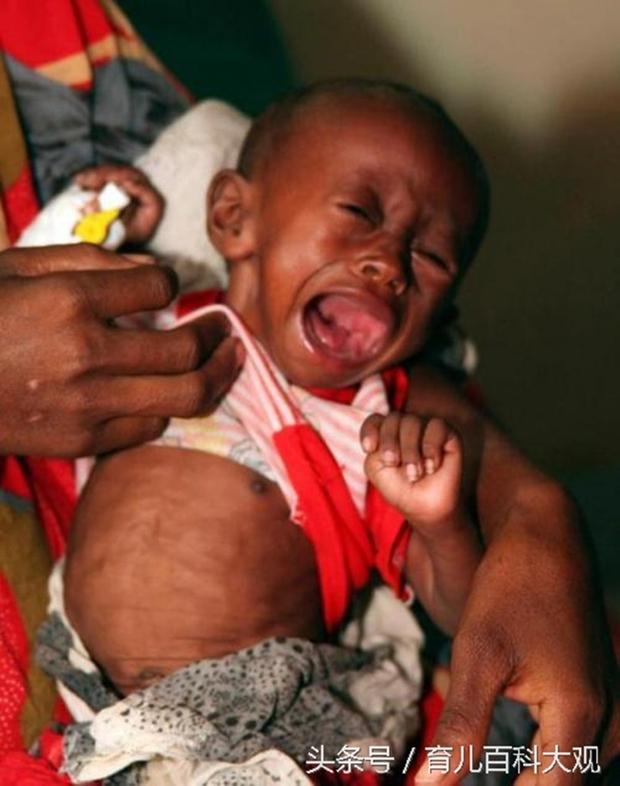 Chùm ảnh những đứa trẻ châu Phi gầy trơ xương vì đói sẽ khiến bạn không dám bỏ thừa đồ ăn thêm nữa - Ảnh 12.