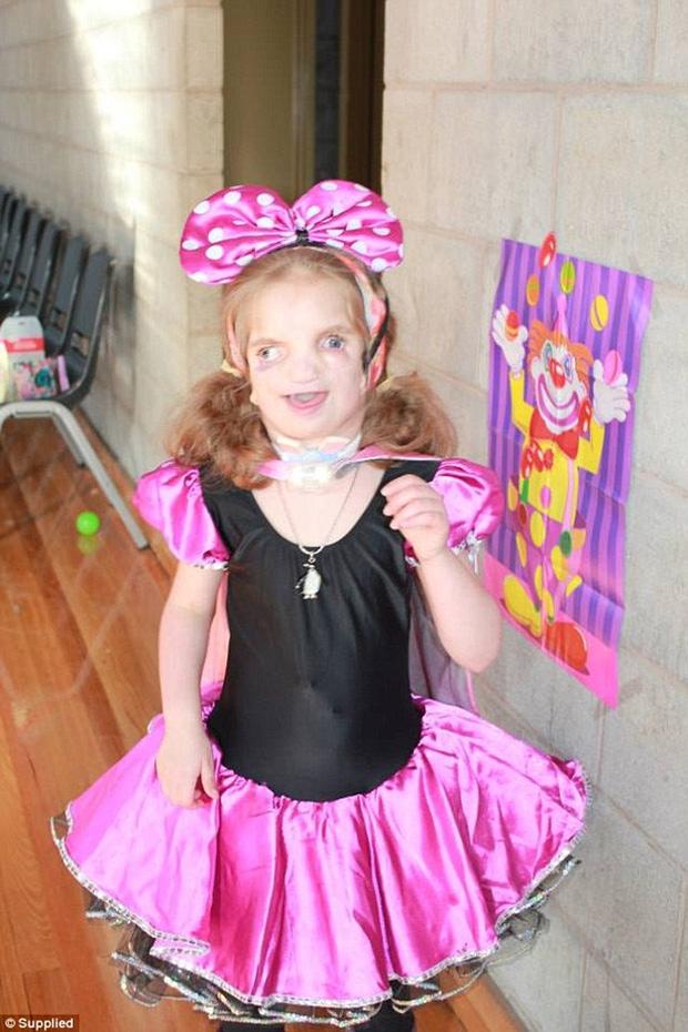 Vượt lên tất cả, cô bé 7 tuổi với gương mặt biến dạng này vẫn sống rất hạnh phúc - Ảnh 4.