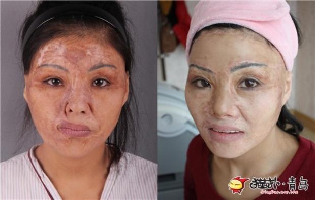 Ham đẹp như gái Hàn, nhiều phụ nữ Trung Quốc ôm hận thiên thu vì phẫu thuật thẩm mỹ hỏng - Ảnh 11.