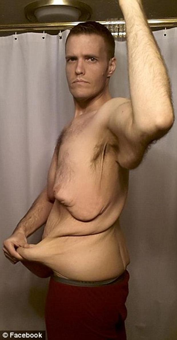 Sau khi xem xong chùm ảnh này, có lẽ bạn sẽ không còn điên cuồng giảm cân nữa - Ảnh 6.
