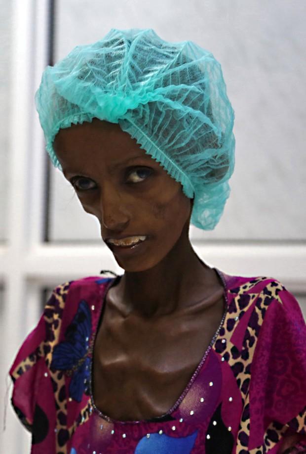 Những thân hình chỉ còn da bọc xương gây sốc: Cả một thế hệ của Yemen đang đứng trước nguy cơ diệt vong vì nạn - Ảnh 7.