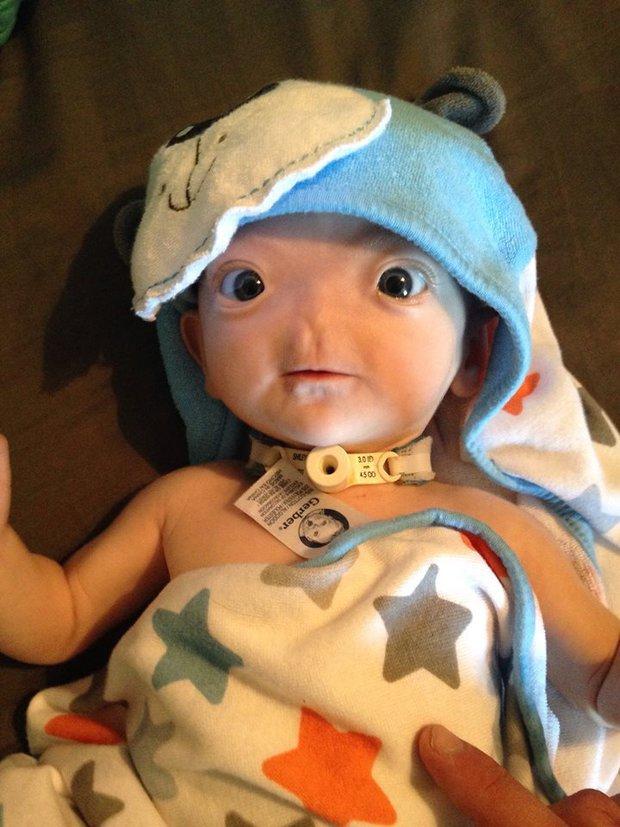 Dù không có mũi, nhưng cậu bé này vẫn được bình chọn là em bé có gương mặt đáng yêu nhất trên Facebook - Ảnh 4.