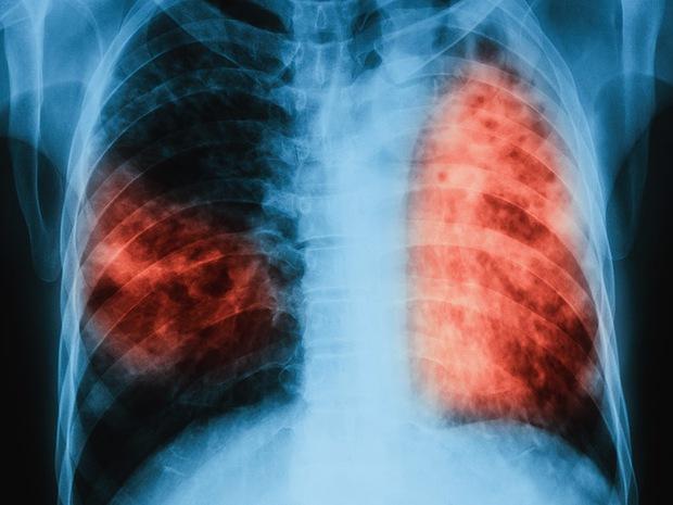 5 căn bệnh chết người và những sai lầm khó hiểu của khoa học - Ảnh 5.