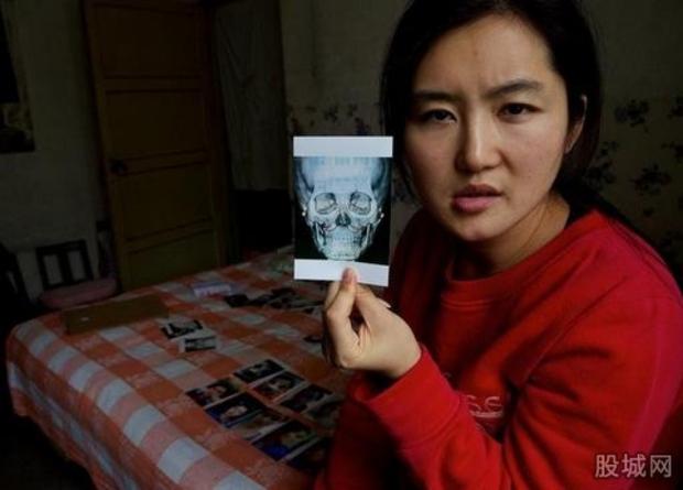 Ham đẹp như gái Hàn, nhiều phụ nữ Trung Quốc ôm hận thiên thu vì phẫu thuật thẩm mỹ hỏng - Ảnh 8.