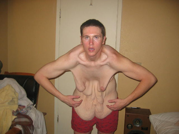 Sau khi xem xong chùm ảnh này, có lẽ bạn sẽ không còn điên cuồng giảm cân nữa - Ảnh 20.