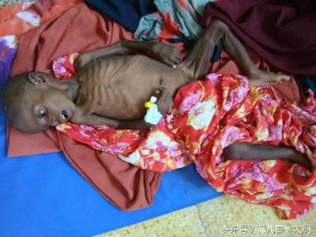 Chùm ảnh những đứa trẻ châu Phi gầy trơ xương vì đói sẽ khiến bạn không dám bỏ thừa đồ ăn thêm nữa - Ảnh 2.