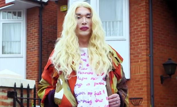 Rocker đồng tính người Anh trải lòng về 300 ca mổ để khắc phục hậu quả phẫu thuật thẩm mỹ hỏng - Ảnh 8.