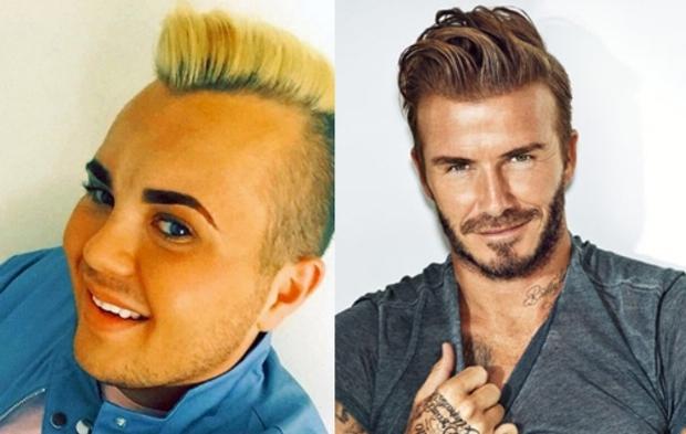 Thanh niên thất nghiệp dùng 500 triệu tiền trợ cấp để phẫu thuật giống David Beckham - Ảnh 7.