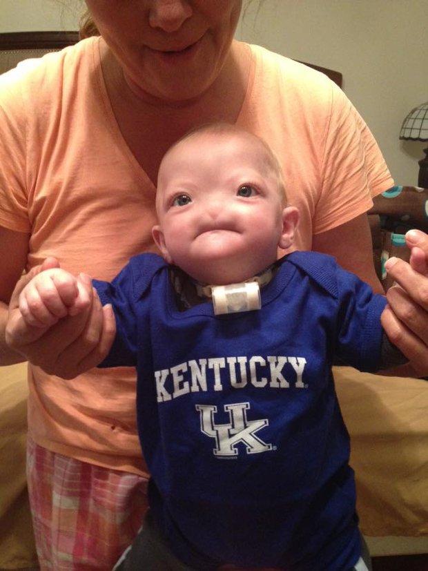 Dù không có mũi, nhưng cậu bé này vẫn được bình chọn là em bé có gương mặt đáng yêu nhất trên Facebook - Ảnh 5.