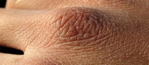 Giảm cân không đúng cách sẽ tàn phá làn da bạn thế nào? - Ảnh 1.
