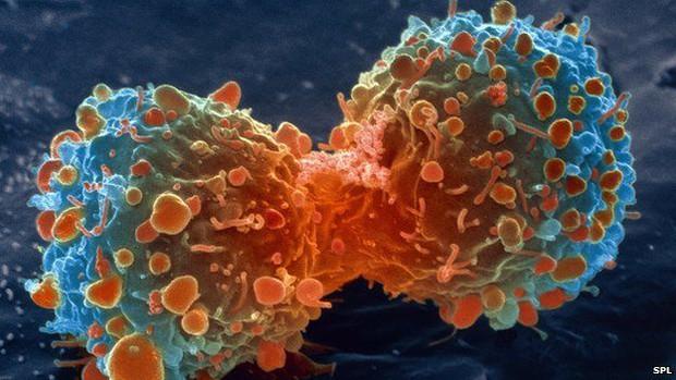 Tìm ra phương pháp xét nghiệm ung thư an toàn nhất từ trước đến nay - Ảnh 1.