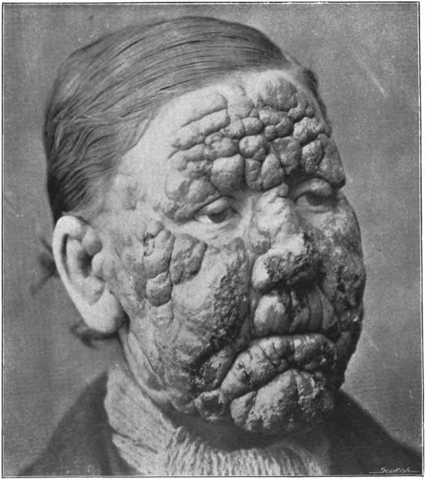 5 căn bệnh chết người và những sai lầm khó hiểu của khoa học - Ảnh 7.