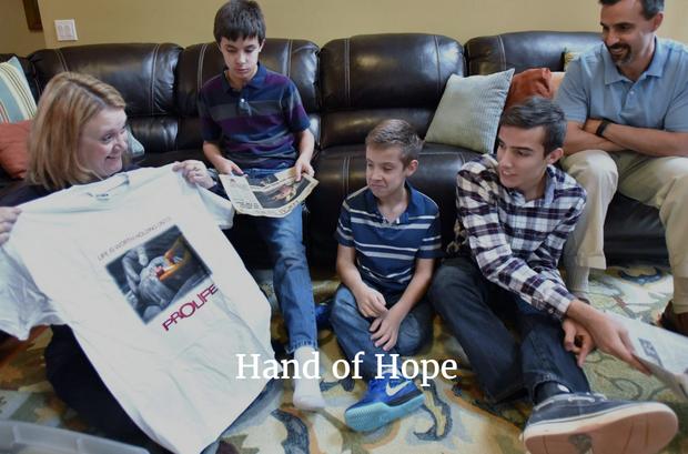 Thai nhi 21 tuần tuổi trong bức ảnh nắm chặt ngón tay bác sĩ gây chấn động thế giới giờ ra sao? - Ảnh 3.