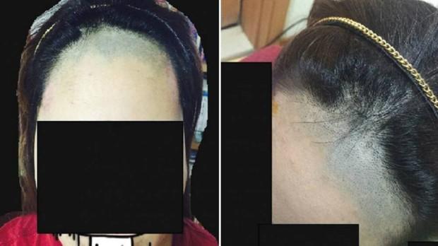 1 lít nước mắt: Cô nàng khóc thét bị thợ cắt tóc biến tóc mái thành sân bay - Ảnh 1.