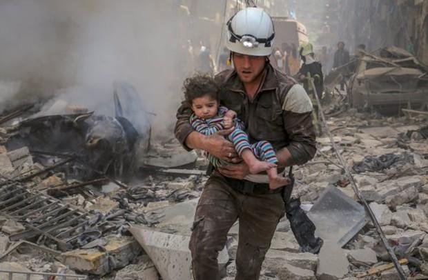 Em bé 5 tuổi bị không kích: Khi ánh mắt lạnh lẽo và dửng dưng trở thành biểu tượng chiến tranh - Ảnh 7.