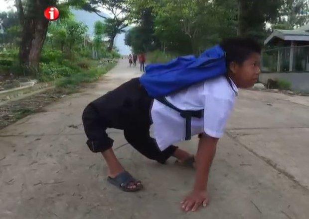 Có ít nhất 80.000 người trên Trái đất đang buộc phải đi bằng 4 chân vì căn bệnh này - Ảnh 3.