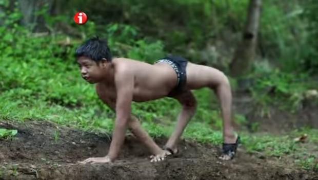 Có ít nhất 80.000 người trên Trái đất đang buộc phải đi bằng 4 chân vì căn bệnh này - Ảnh 1.