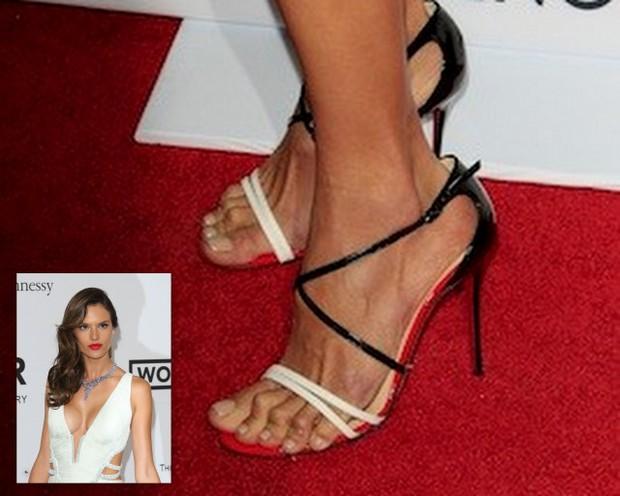Nguy cơ hỏng cả chân vì đi giày cao gót nhiều mà không biết cách xử lý - Ảnh 4.