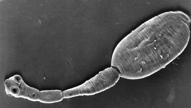 8 loại ký sinh trùng có nguy cơ lẩn trốn trong thức ăn bạn ăn hàng ngày - Ảnh 4.