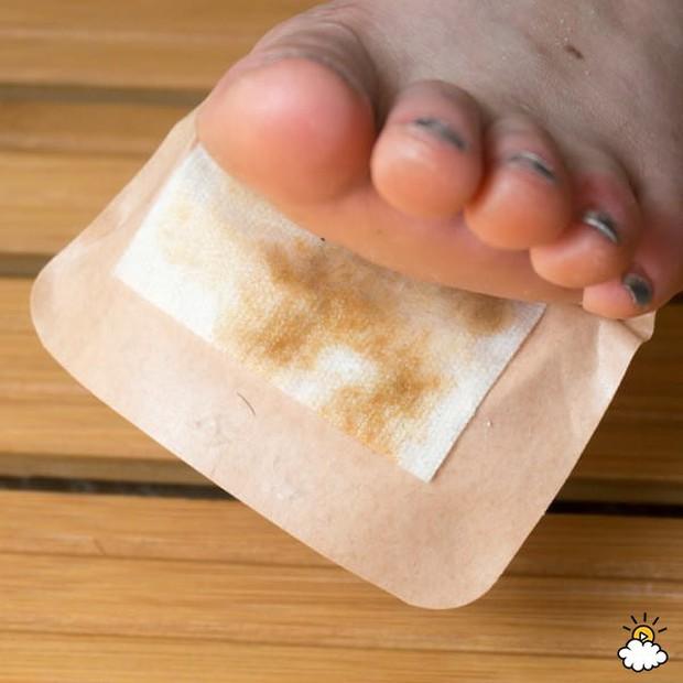Tự làm miếng dán detox giúp chữa hôi chân và khỏe mạnh hơn - Ảnh 8.