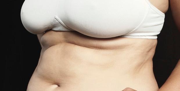 Xác định 3 loại mỡ thừa phổ biến và cách giảm cân hiệu quả nhất dành cho bạn - Ảnh 3.