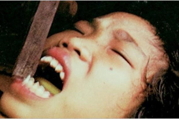 Mài răng, đục mũi... là cách mà phụ nữ đã làm để tránh bị xâm hại tình dục - Ảnh 3.