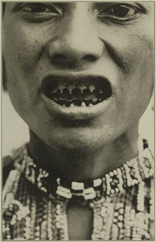 Mài răng, đục mũi... là cách mà phụ nữ đã làm để tránh bị xâm hại tình dục - Ảnh 4.