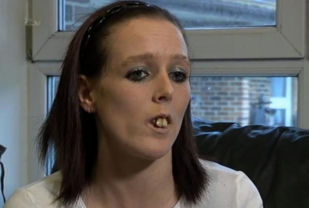 Bạn có nhớ quý cô răng hô năm nào? Gương mặt hiện tại của cô ấy đã xinh đẹp hơn rất nhiều - Ảnh 2.